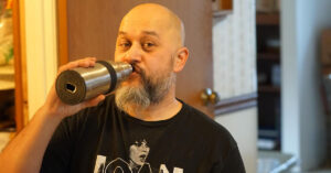 A candidate for scalp micropigmentation drinking beer