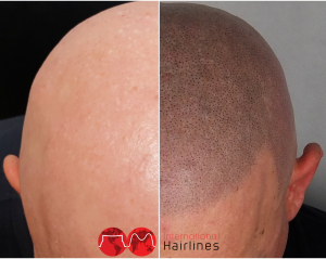scalp micropigmentation alopecia before and after
