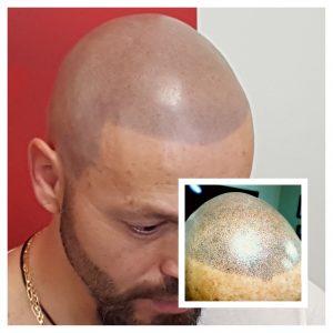 head microblading
