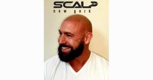 scalp micropigmentation by scalp new york