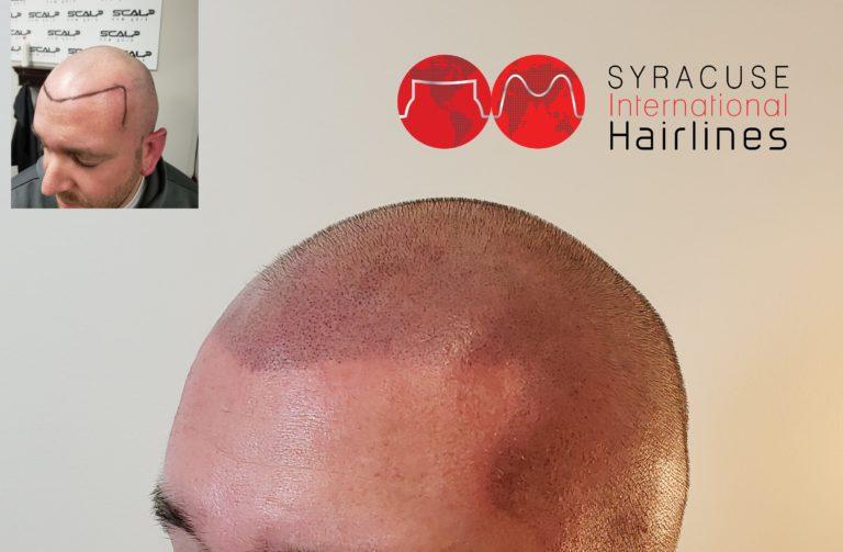 Hairline density_