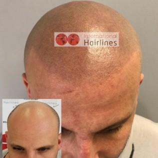 microblading for balding