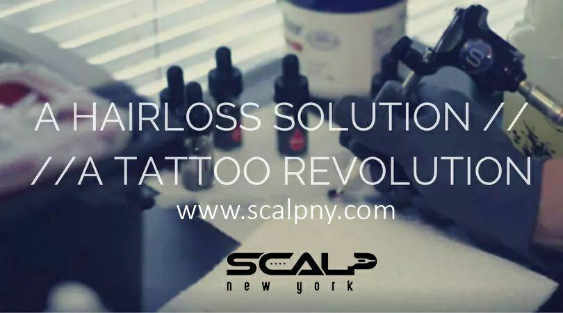 A Hair loss Solution, A Tattoo Revolution