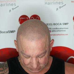 hair pigmentation tattoo