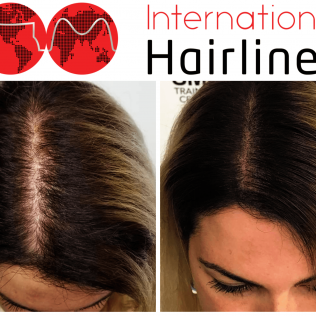 scalp micropigmentation for women before and after