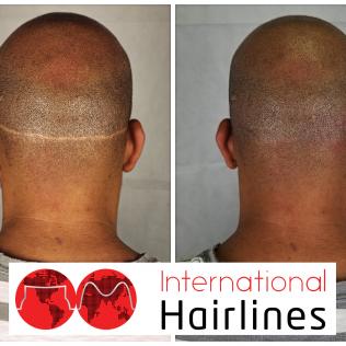 scalp micropigmentation scar concealment