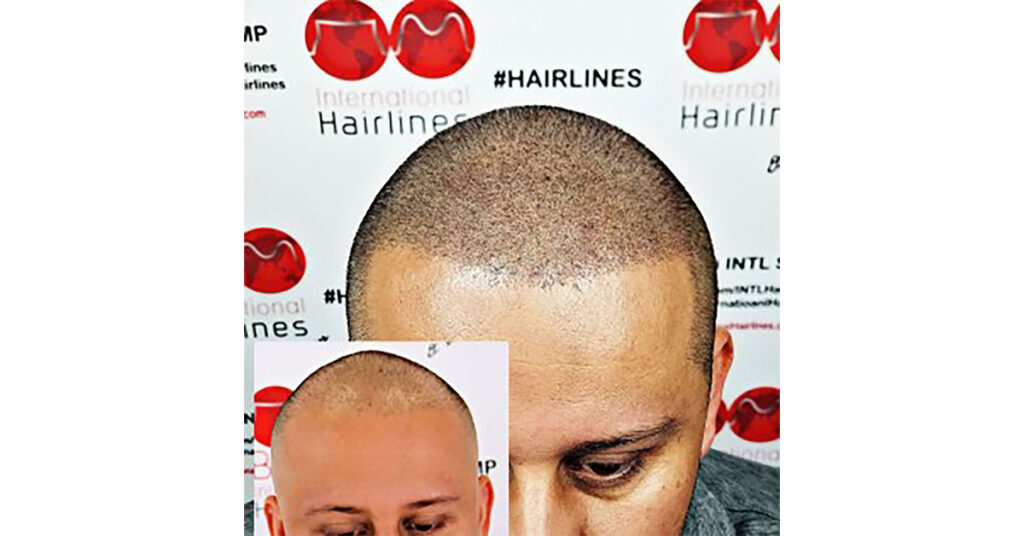 scalp micropigmentation that looks like real hair