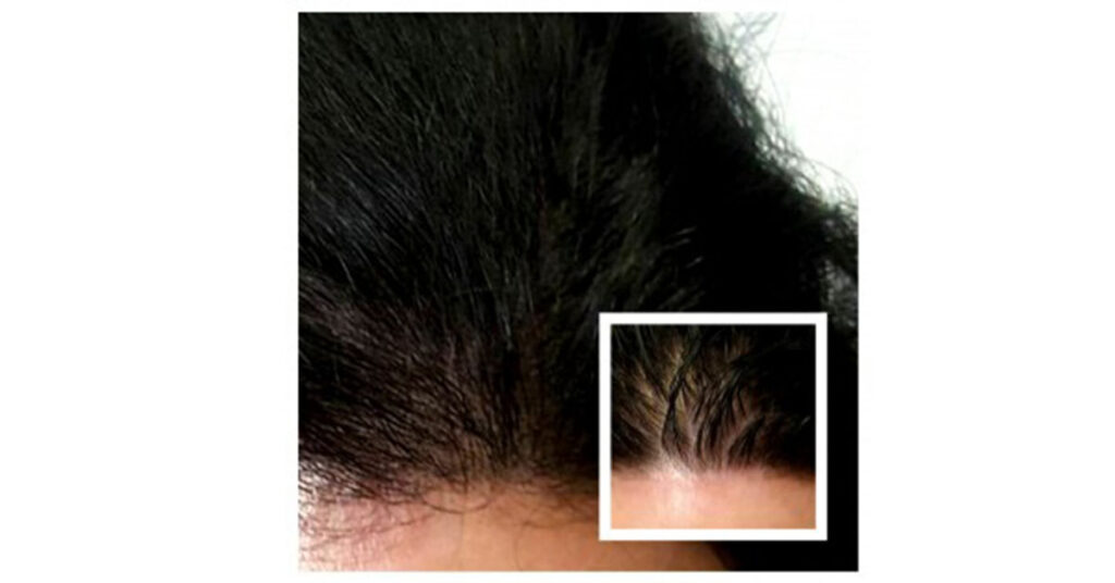 uneven hairline fixed by scalp micropigmentation