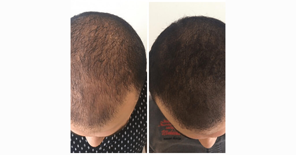 before and after comparison of hair scalp micropigmentation