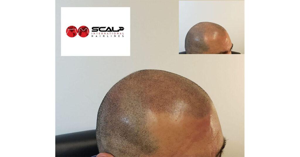 scalp micropigmentation for men by scalp international hairlines