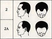 stage 2 male pattern baldness