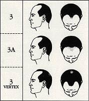 stage 3 male pattern baldness