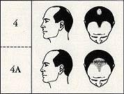 Scalpny stage 4 male pattern baldness