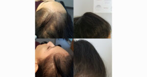 hair loss on one side