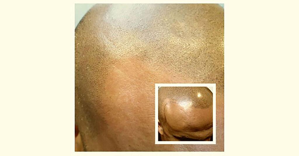 scalp micropigmentation fading