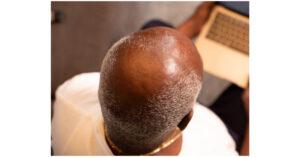 bald men head