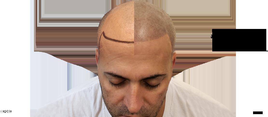 hair restoration professional