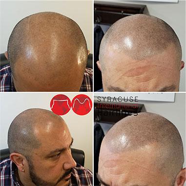 microblading men's hair
