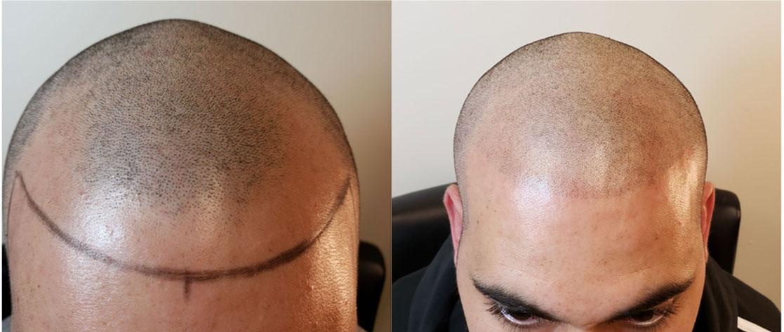 hair micropigmentation