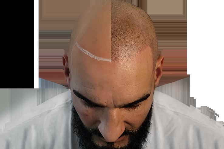 HALF BALD HEAD