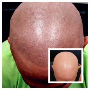 Scalp Micropigmentation For Alopecia